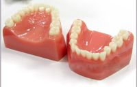 Acrylic/ lucite dental moulding