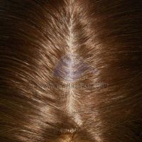100% Brazilian hair medical cap ladies wig