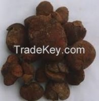 golden brown gallstone